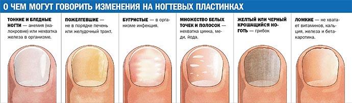 Как убрать грибок ногтей в домашних условиях